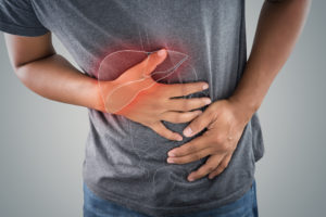 Lynch Syndrome: The Leading Cause of Hereditary Colorectal Cancer